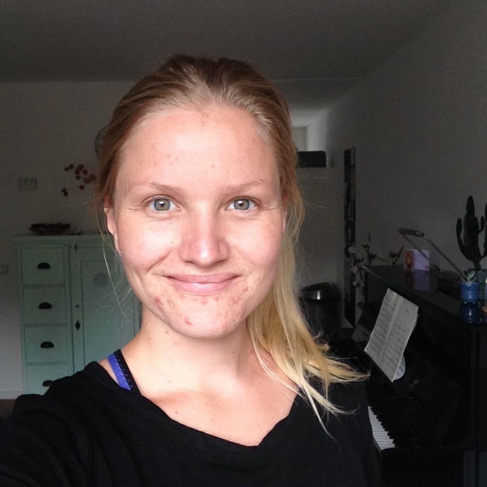 mijn acne verhaal
