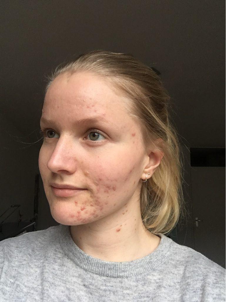 acne op kin